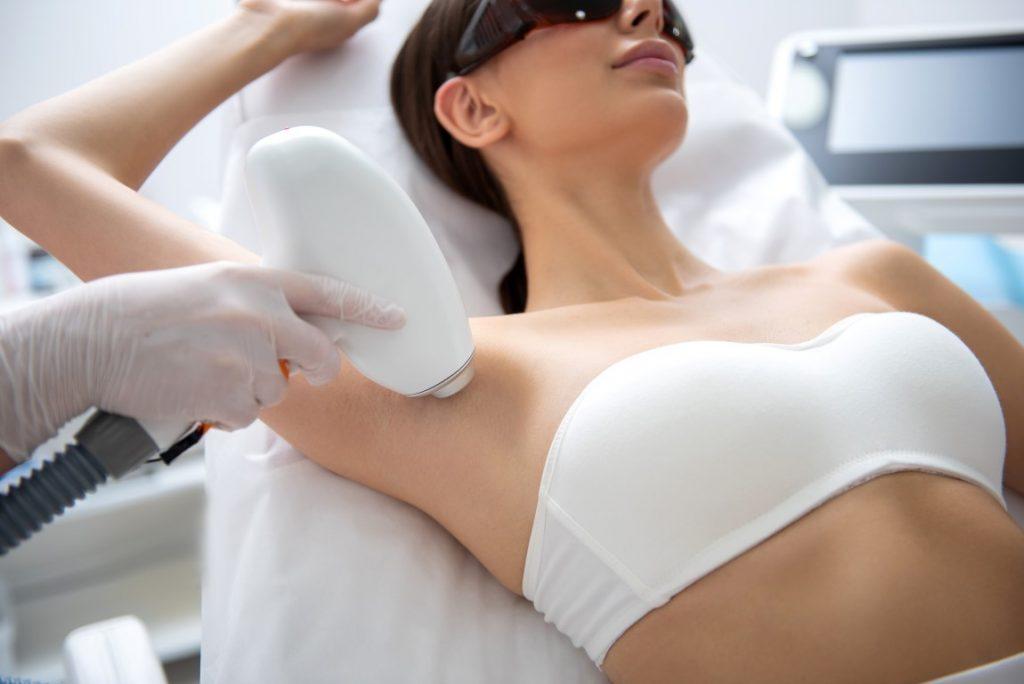 depilacja laserowa